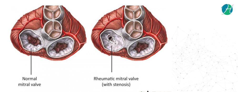 Rheumatic Diseases – Causes, Symptoms, Diagnosis, Treatment   HealthSoul