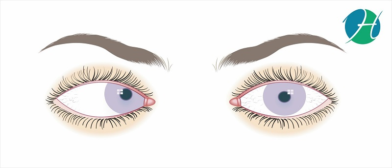 Squint: overview, types, symptoms, causes, diagnosis and treatment | HealthSoul