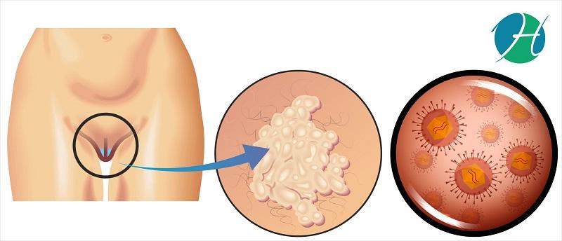 Vulvar cancer: overview, symptoms, causes, diagnosis and management   HealthSoul