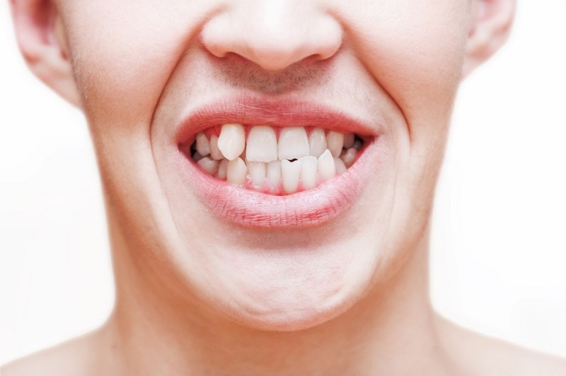 8 Negative Effects of Crooked Teeth on Oral and Overall Health | HealthSoul