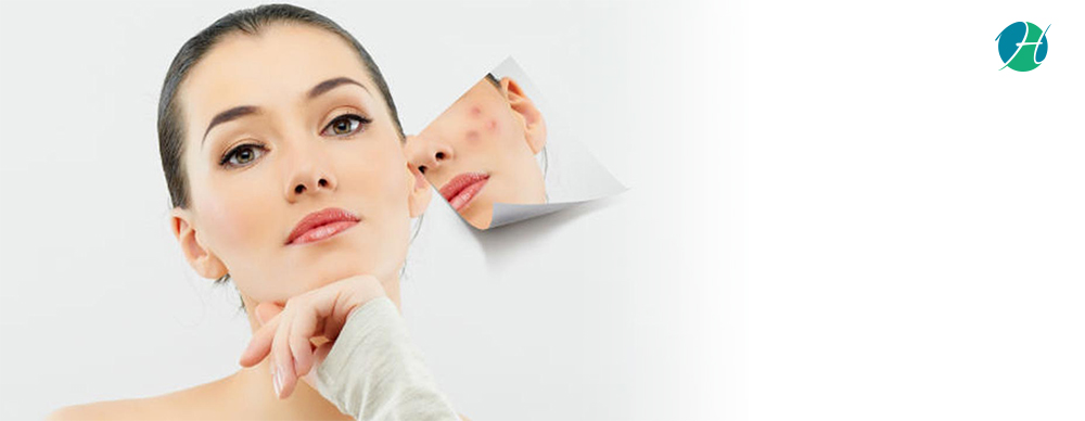 Learn about Acne: Causes, Diagnosis, and Treatment   HealthSoul