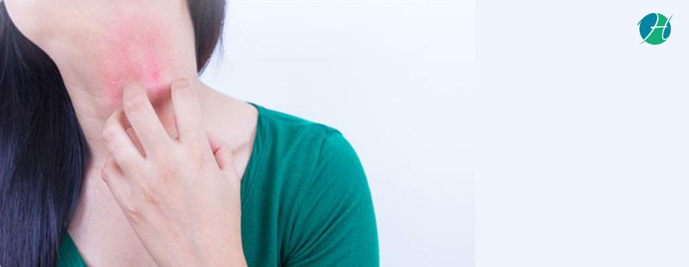 Eczema: Symptoms, Diagnosis and Treatment | HealthSoul