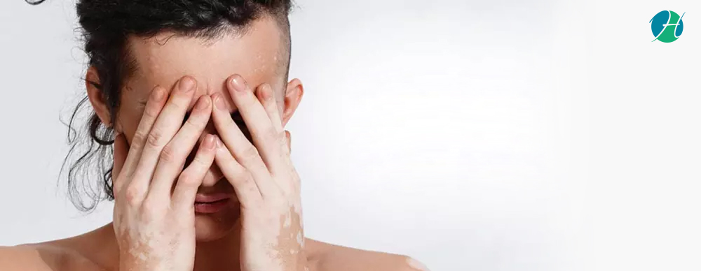 Vitiligo : Skin Disease Due to Lack of Melanin | HealthSoul