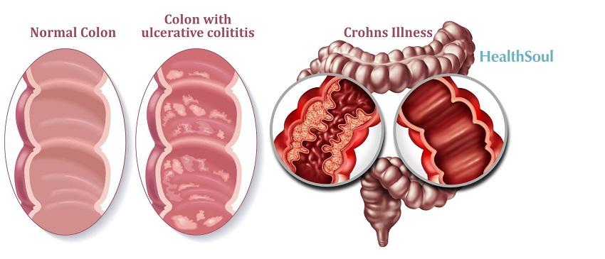 Inflammatory Bowel Disease: Crohn's Disease and Ulcerative Colitis | HealthSoul