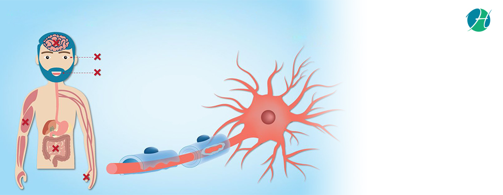 Multiple Sclerosis: Symptoms, Diagnosis, and Treatment | HealthSoul