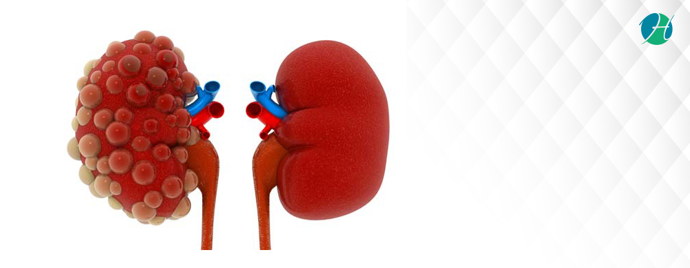 Polycystic Kidney Disease: Symptoms, Diagnosis, and Treatment   HealthSoul