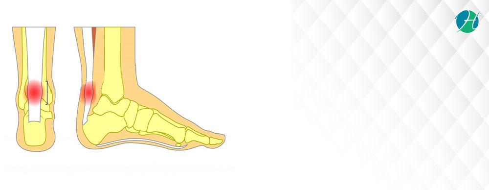 Achilles Tendonitis: Symptoms, Diagnosis and Treatment | HealthSoul