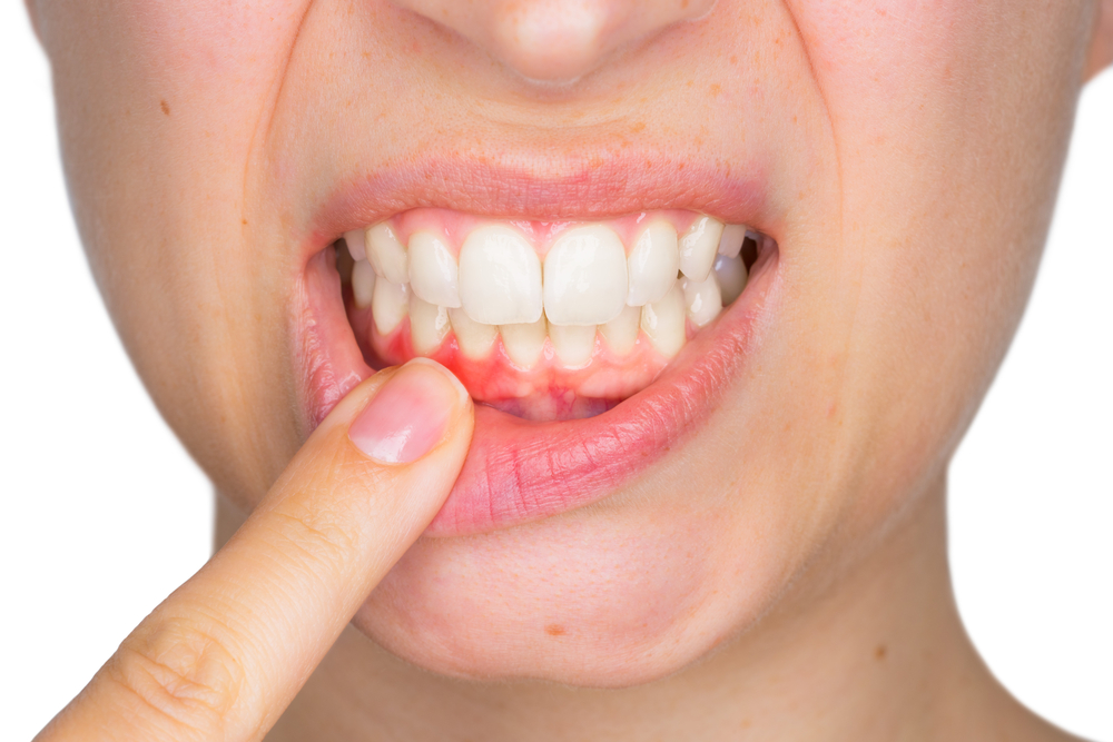 Gingivitis: Causes And Treatment | HealthSoul