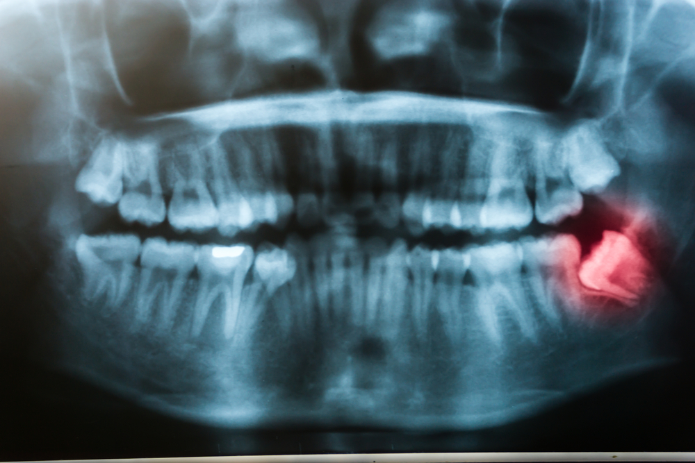 Impacted Tooth: Symptoms and Complications   HealthSoul
