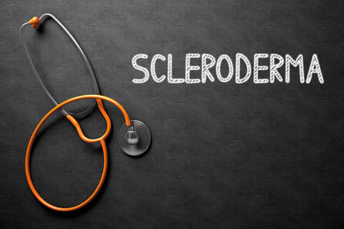 Scleroderma: Symptoms, Diagnosis and Treatment | HealthSoul