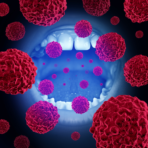 Oral Cancer: Causes, Symptoms and Treatment   HealthSoul