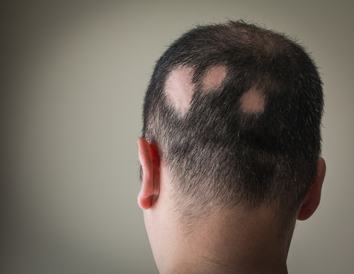 Alopecia: Evaluation and Treatment   HealthSoul