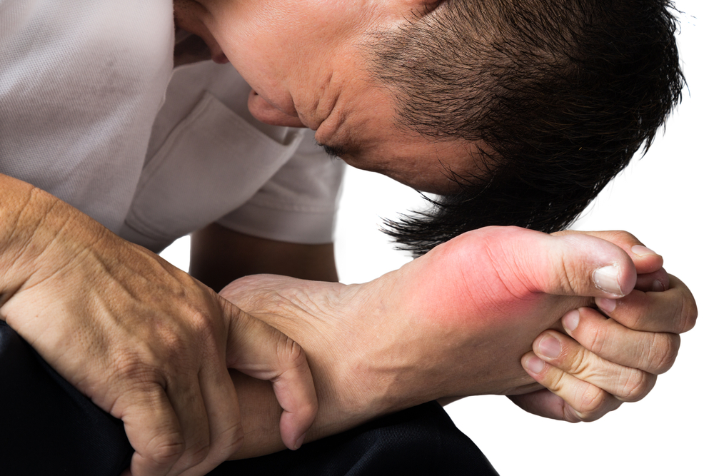 Gout: Causes, Symptoms and Treatment | HealthSoul