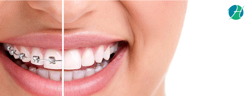 Dental Braces: Indications, Complications and Restrictions | HealthSoul