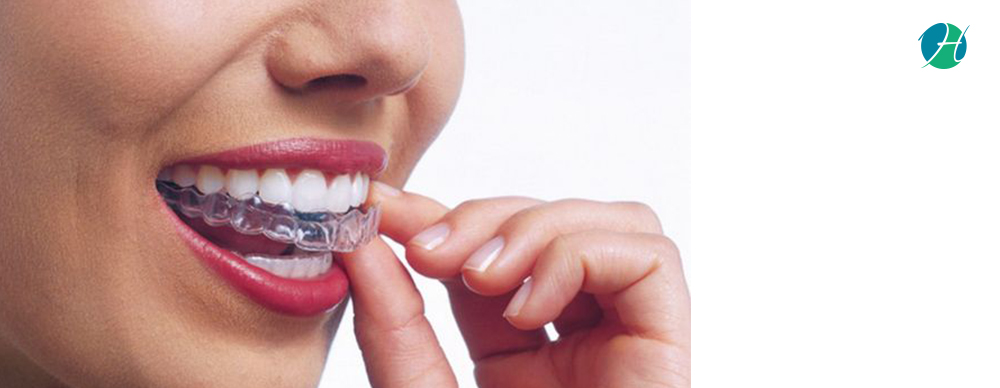 Dental Retainers: Indications, Types and Care   HealthSoul