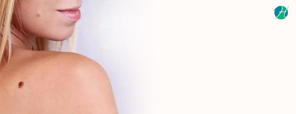 Moles: Symptoms, Types, Diagnosis and Treatment | HealthSoul