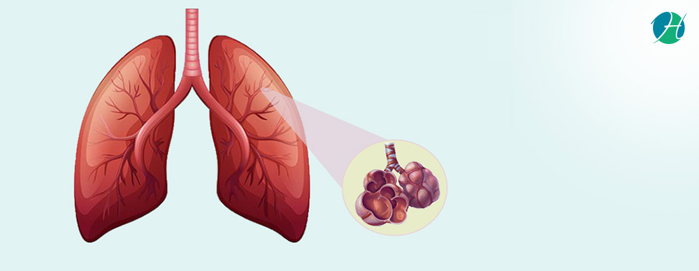 Pulmonary Fibrosis: Causes, Symptoms and Treatment | HealthSoul