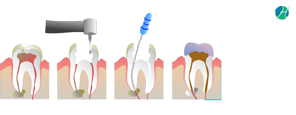 Root Canal: Indications and Risks   HealthSoul