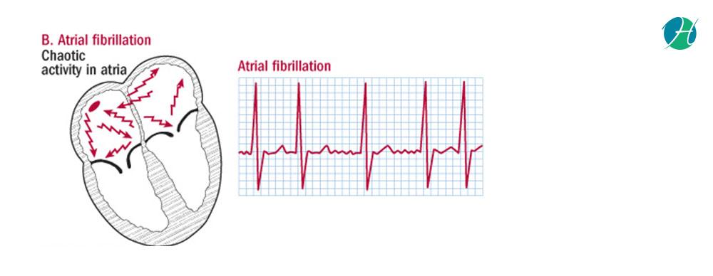 Atrial Fibrillation: A common cause of stroke | HealthSoul