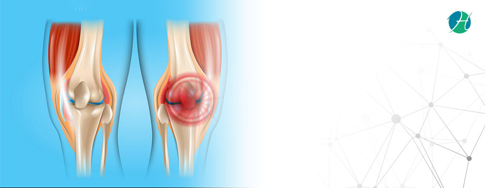Torn Meniscus: Causes, Symptoms and Treatment | HealthSoul