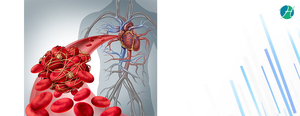 Atrial Fibrillation Ablation: Indications and Complications | HealthSoul