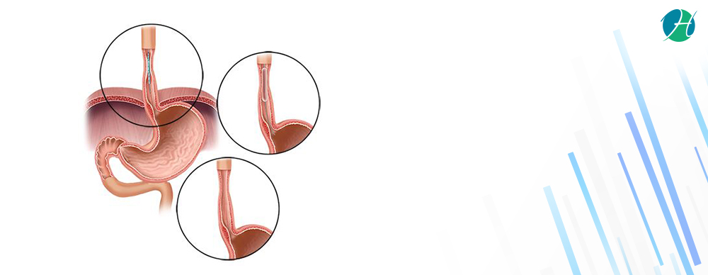 Esophageal Dilation: Indications and Complications | HealthSoul