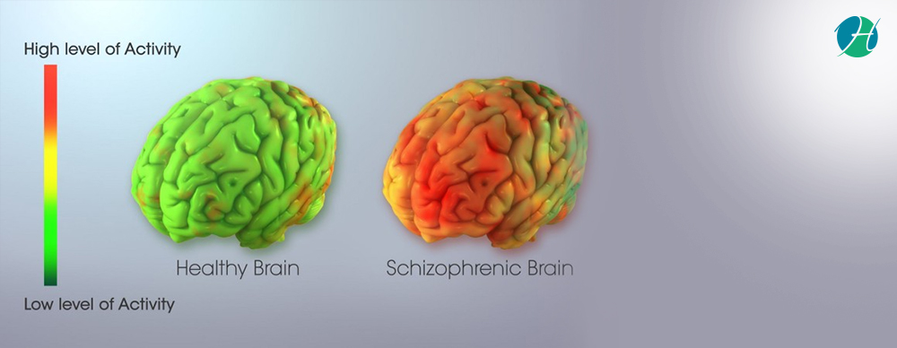 Schizoaffective Disorder: Symptoms and Treatment | HealthSoul