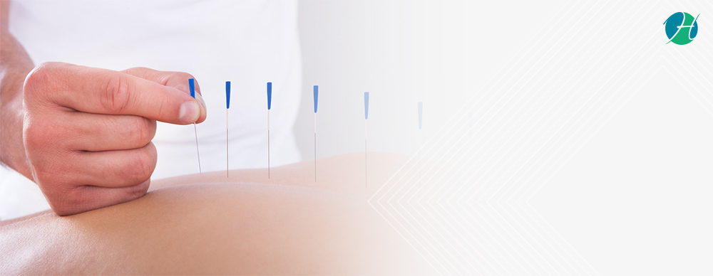 Learn About Acupuncturists: Conditions They Treat and When to see one? | HealthSoul