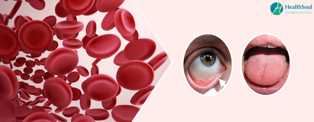 Anemia: Symptoms, Causes and Treatment   HealthSoul