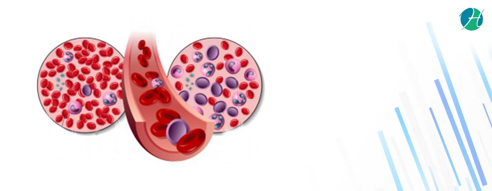 Acute Myeloid Leukemia: Symptoms and Treatment   HealthSoul