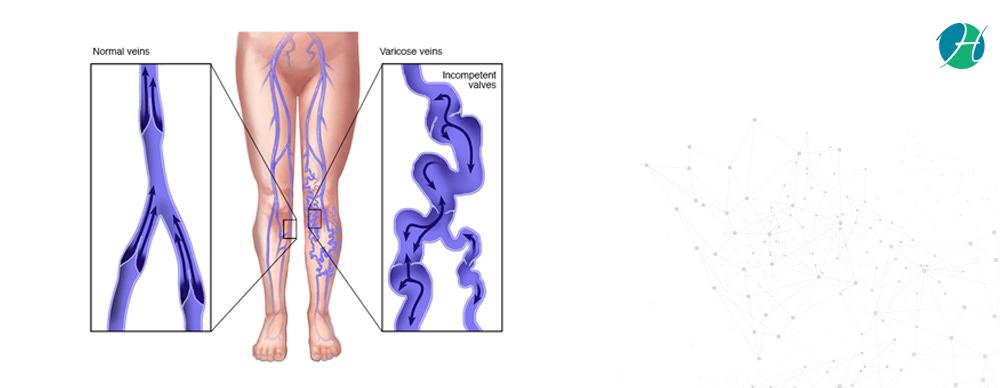 Varicose Veins: Symptoms and Treatment | HealthSoul
