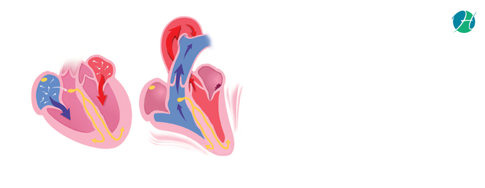 Arrhythmias: Causes and Treatment | HealthSoul