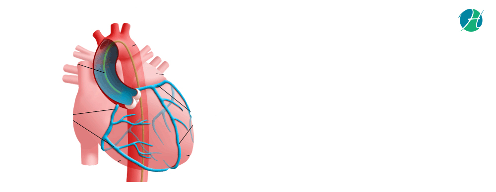 Cardiac Catheterization | HealthSoul