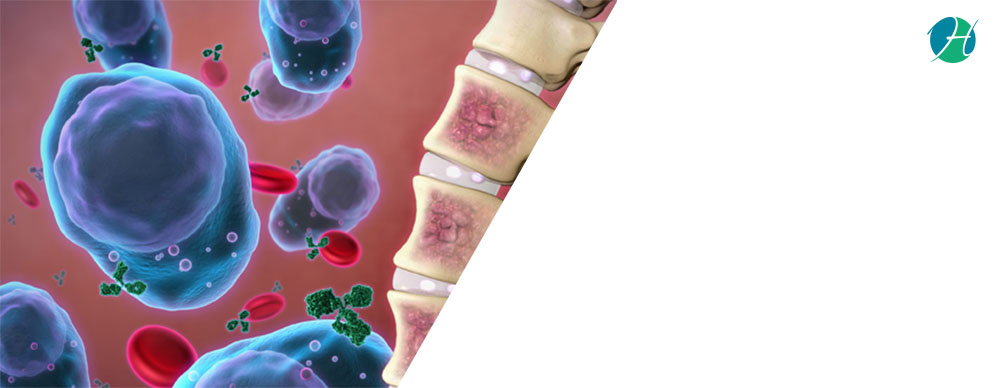 Multiple Myeloma: Symptoms and Treatment | HealthSoul