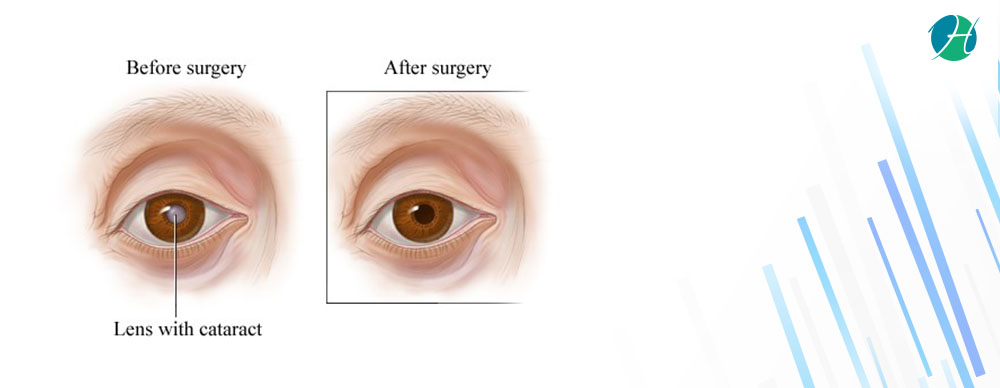 Cataract Surgery: Indications and Complications   HealthSoul
