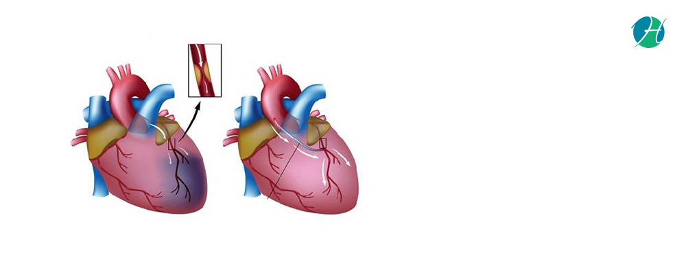 Coronary Artery Bypass Grafting | HealthSoul