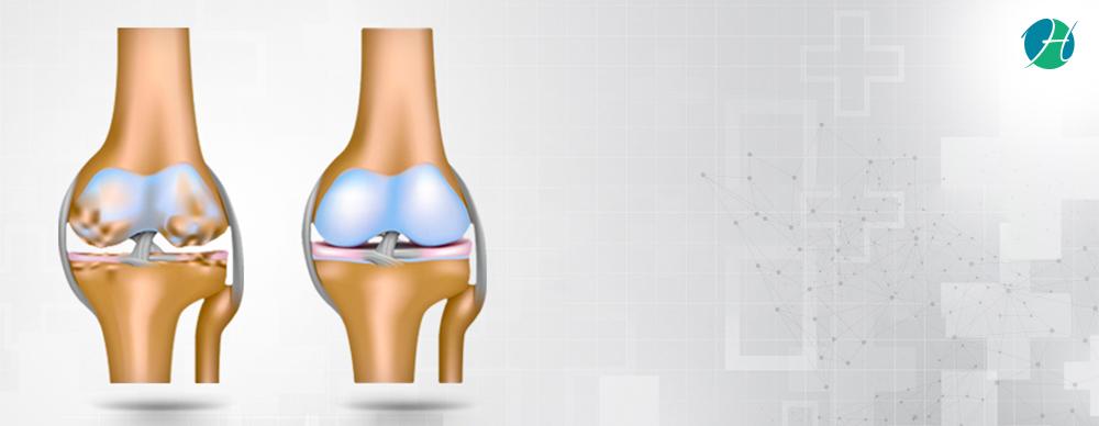 Osteoarthritis: Symptoms, Diagnosis and Treatment | HealthSoul