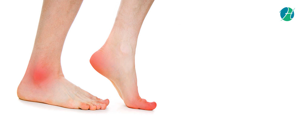 Heel and Foot Pain: Causes and Treatment | HealthSoul