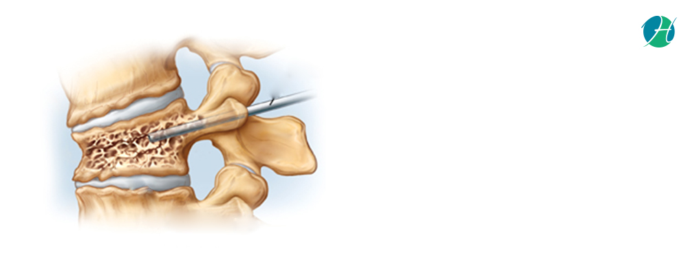 Kyphoplasty: Indications and Complications | HealthSoul