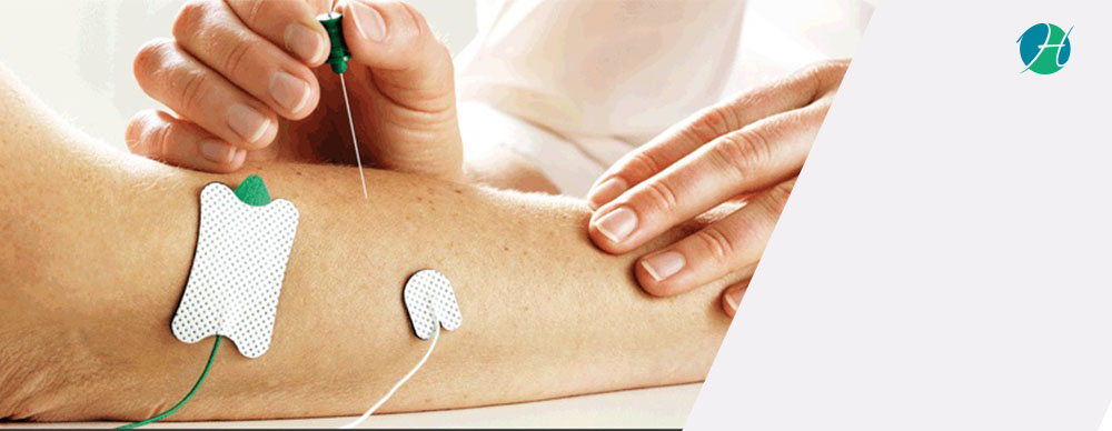 EMG and NCS: Indications | HealthSoul