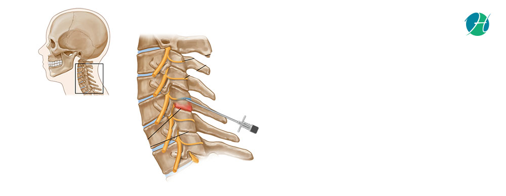 Medial Branch Block: Indications and Complications | HealthSoul