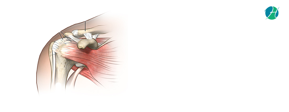 Rotator Cuff Repair: Indications and Complications | HealthSoul