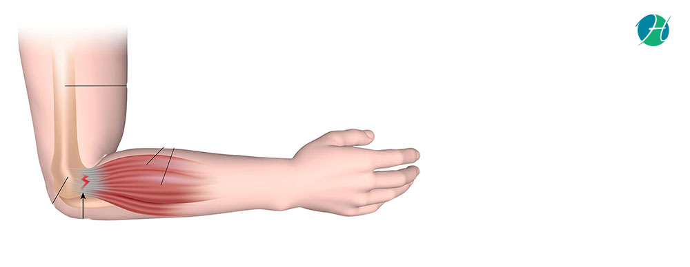 Epicondylitis: Causes and Treatment   HealthSoul