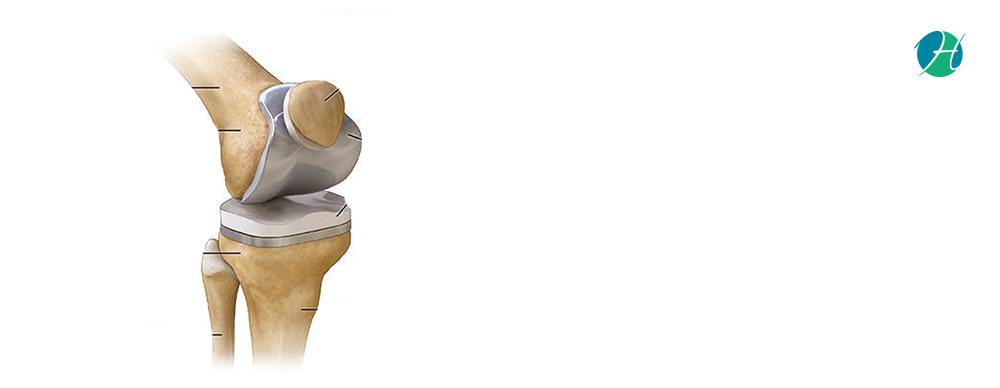 Total Knee Arthroplasty: Indications and Complications | HealthSoul