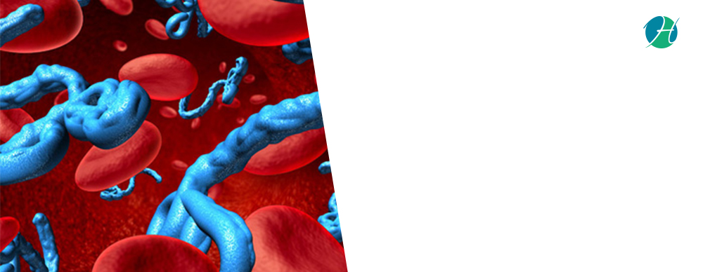 Ebola Virus Disease: Symptoms and Treatment | Health Soul