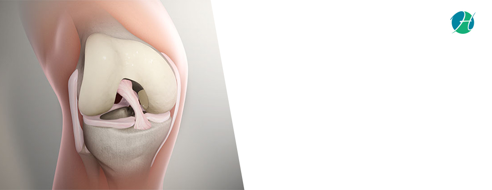 Anterior Cruciate Ligament (ACL) Rupture: Symptoms and Treatment | HealthSoul