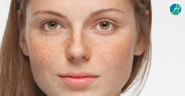 Hyperpigmentation | HealthSoul