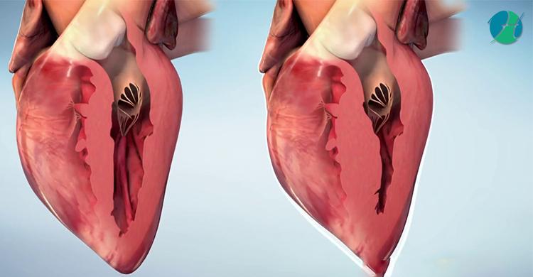 Hypertrophic Cardiomyopathy | HealthSoul