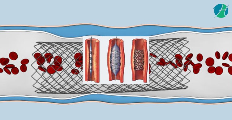 Coronary Angioplasty and Stent | HealthSoul