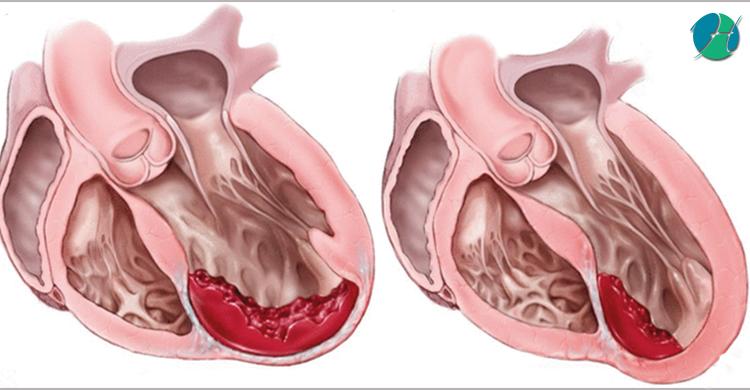 Ischemic Cardiomyopathy | HealthSoul